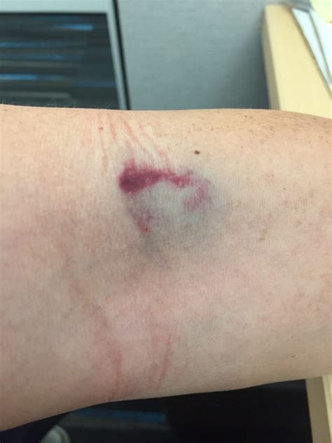 Bruise from my Blood Test- Day 1 - Yelp